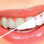 جرم گیری و سفید کردن دندان با خمیرجوش شیرین